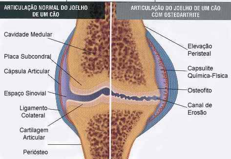 doença articular articulações joelho